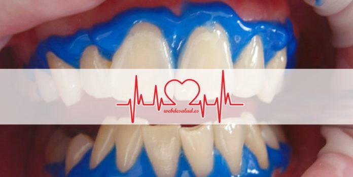 mitos blanqueamiento dental portada