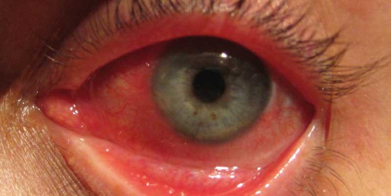 lagañas en los ojos remedios caseros