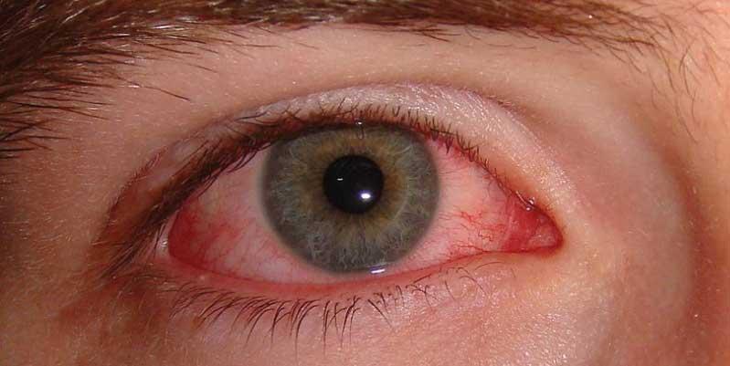 conjuntivitis alergica tratamiento natural