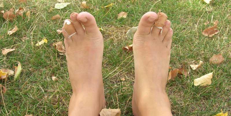 como sanar una ampolla en el pie