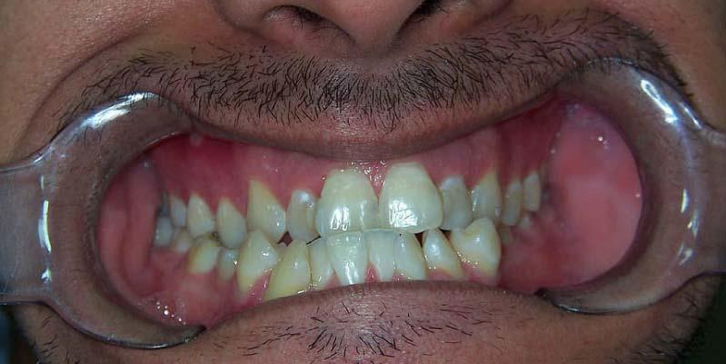 caida de los dientes