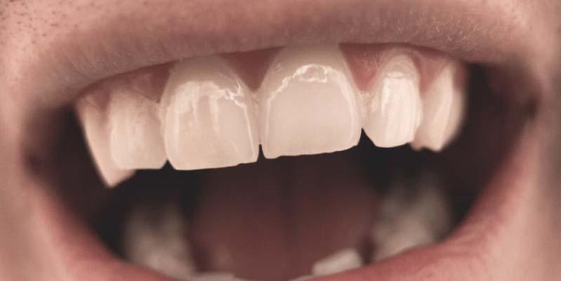 caida de dientes a los 3 años