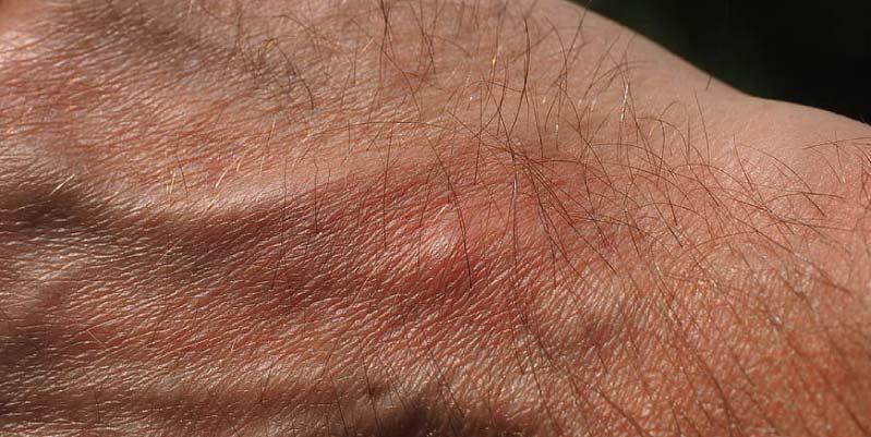 Síntomas de la picadura de mosquito