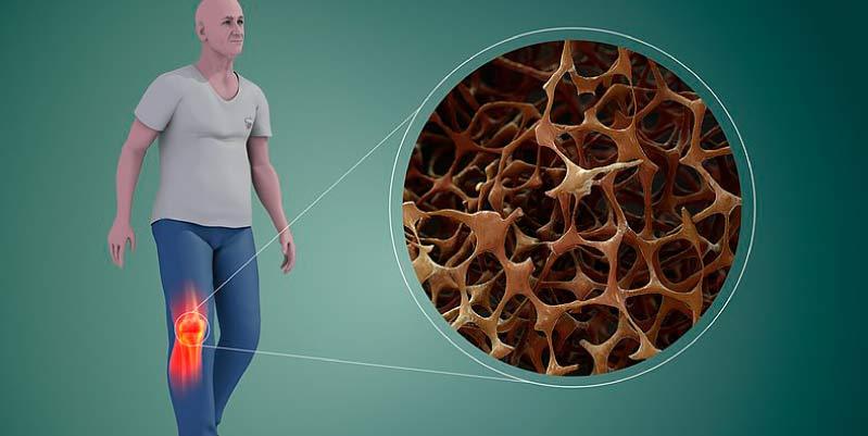 como se puede prevenir la osteoporosis