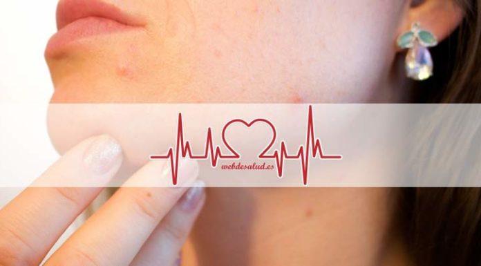 como reducir cicatrices de acne