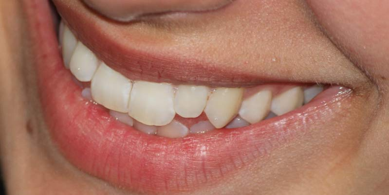 Las 10 Mejores Clínicas Dentales en Sevilla