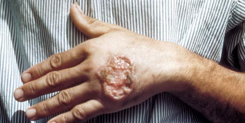 leishmaniasis sintomas humanos