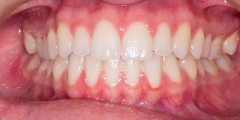 Clínica Dental Gran Vía en Zaragoza