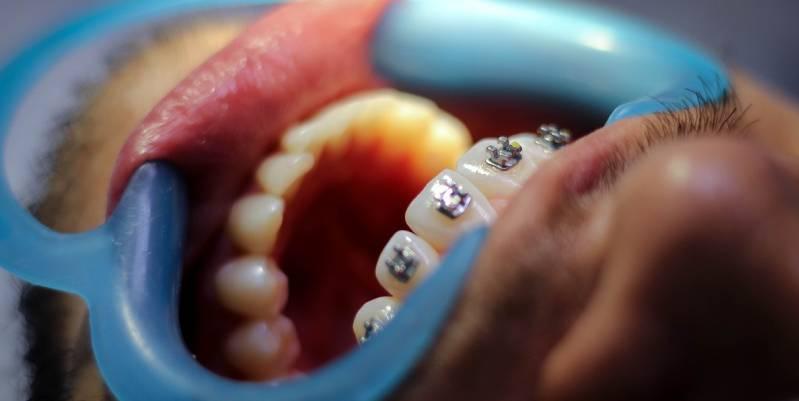 ortodoncia para corregir un diente